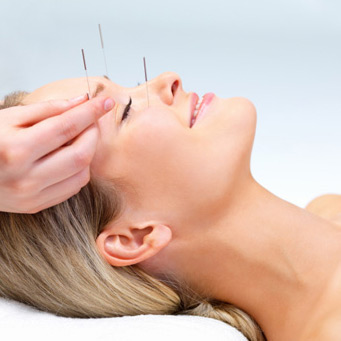 Woman smiling receiving acupuncture care.