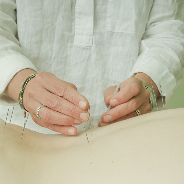 woman receiving acupuncure care needles in back.
