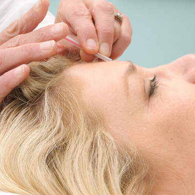 face of woman recieving acupuncture care.